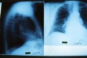 Эмфизема лёгких - симптомы и лечение